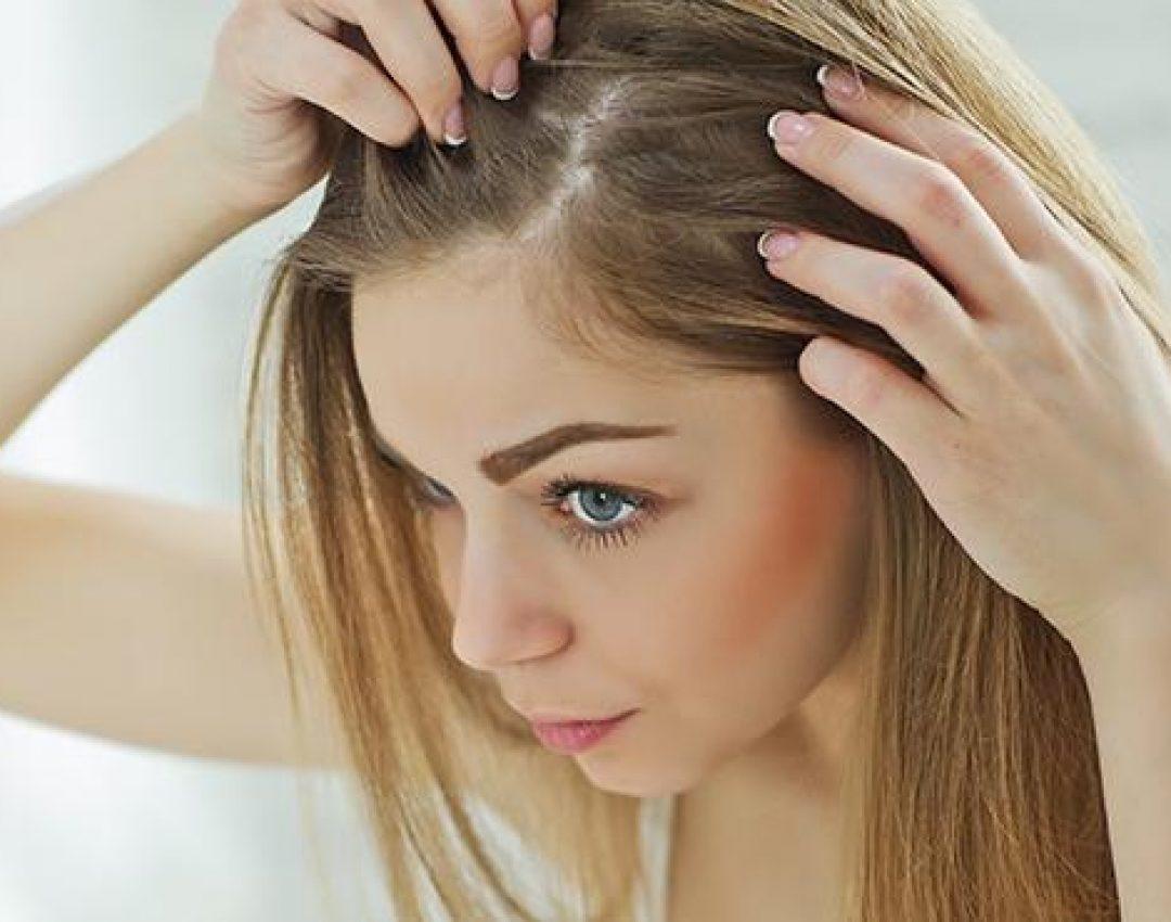 Oslobodite se masne kose uz pomoć sastojaka iz prirode